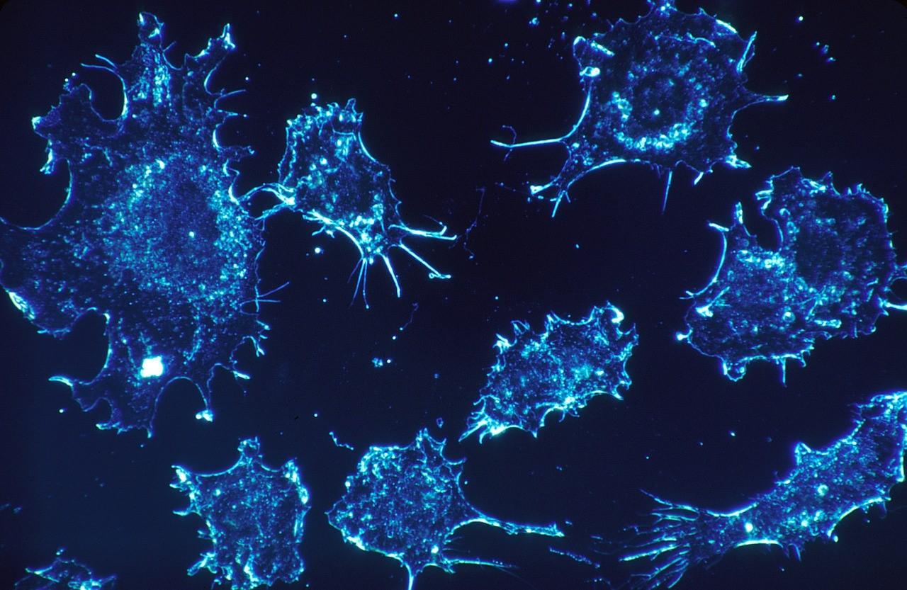 ¿Qué es el cáncer? y ¿Qué significan los términos benigno y maligno?